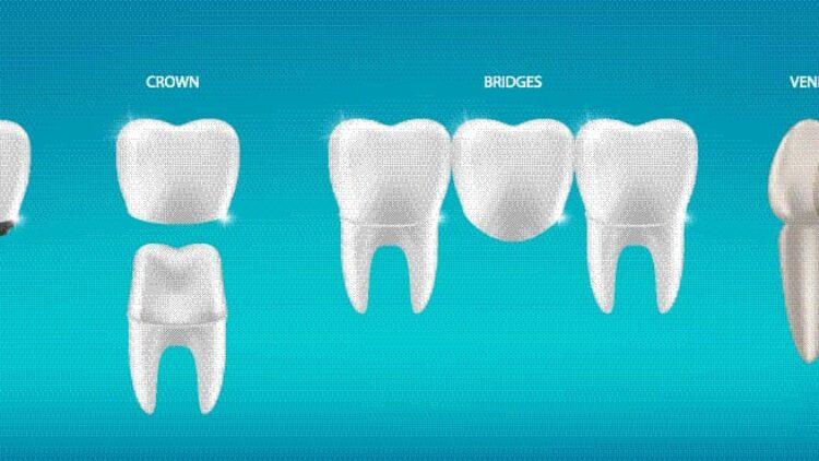 Crowns vs Bridges vs Veneers vs Bonding