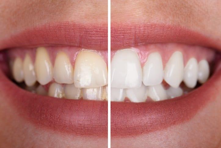 teeth bleaching whitening